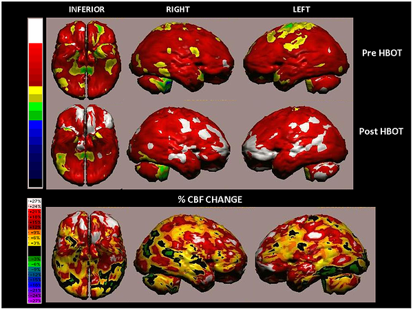 Volume rendered Brain SPECT Perfusion Map